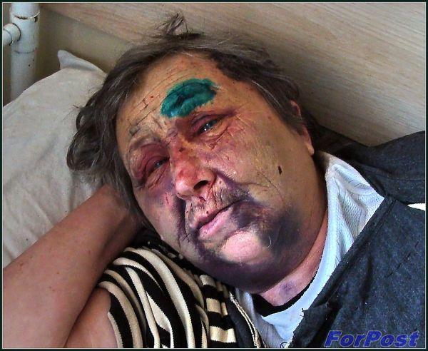 Людмила Владимировна Большакова в больнице после нападения Клименко О. Н.